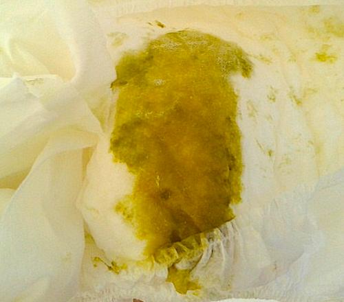 caca verde en bebé