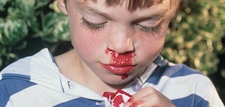 sangrado nasal espontaneo en niños