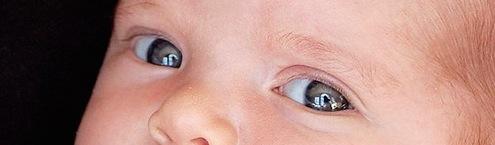Falso estrabismo en bebés