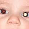 Pupila blanca en bebés