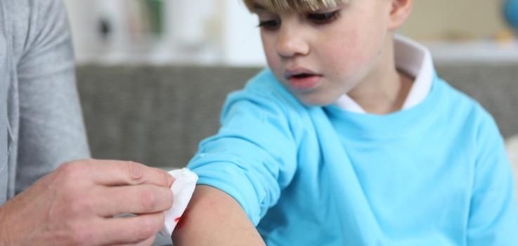 Heridas en niños y bebés
