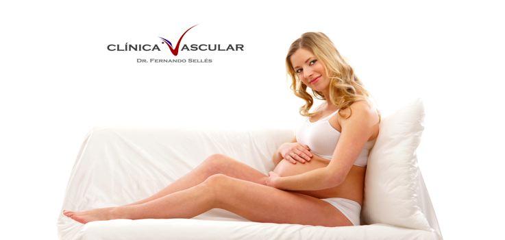 Varices en el Embarazo ¿Cómo evitarlas?